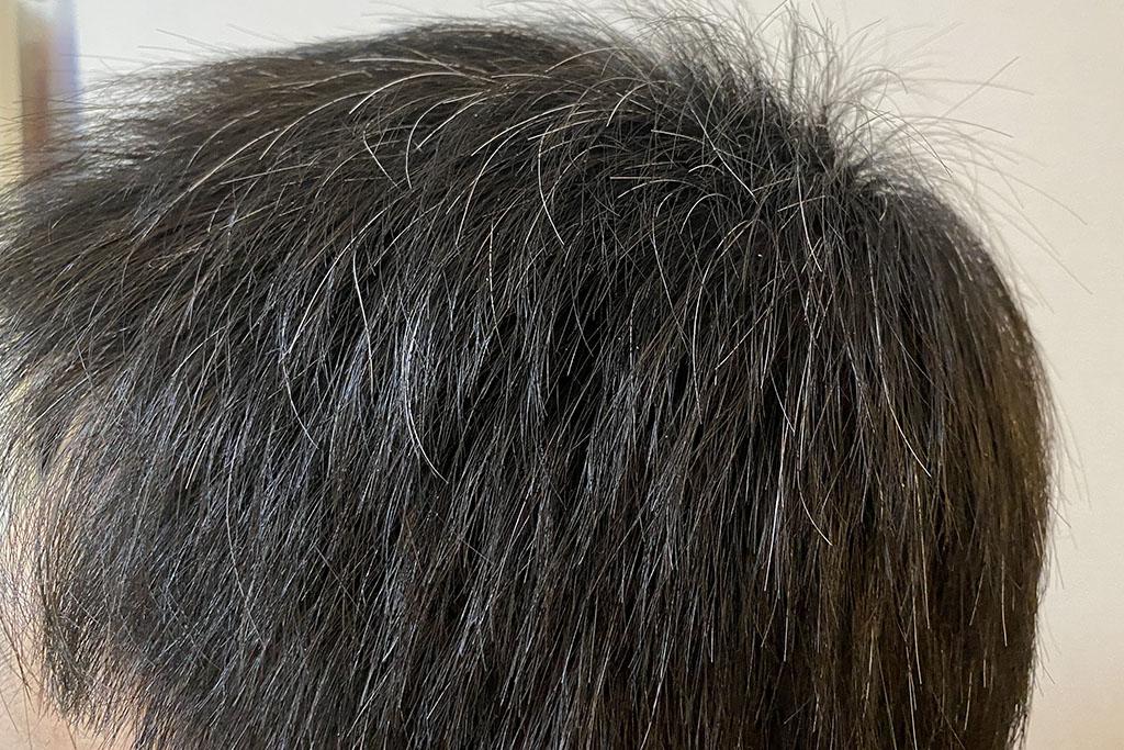 染める前の白髪の状況(サイド)